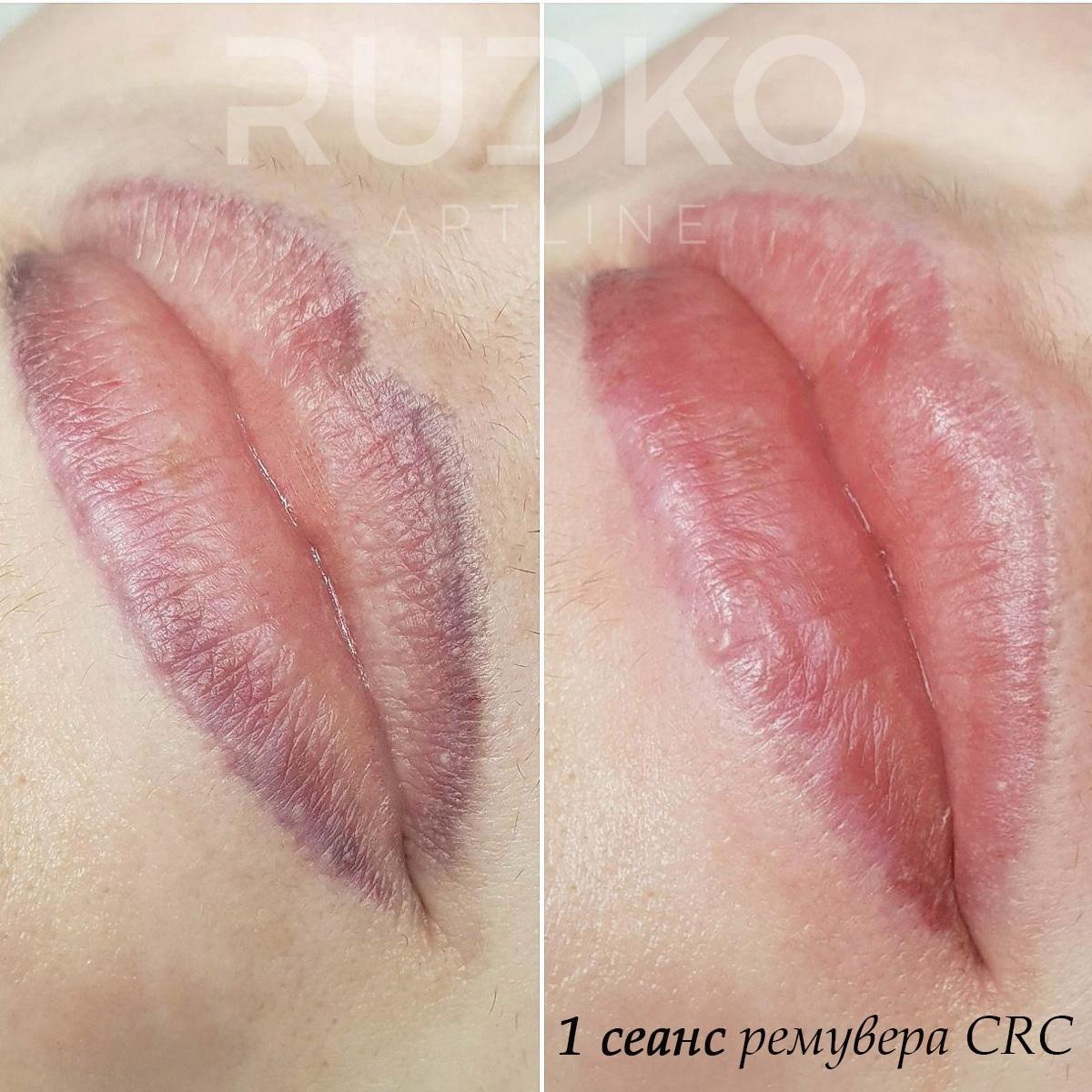 удалить татуаж губ киев быстро