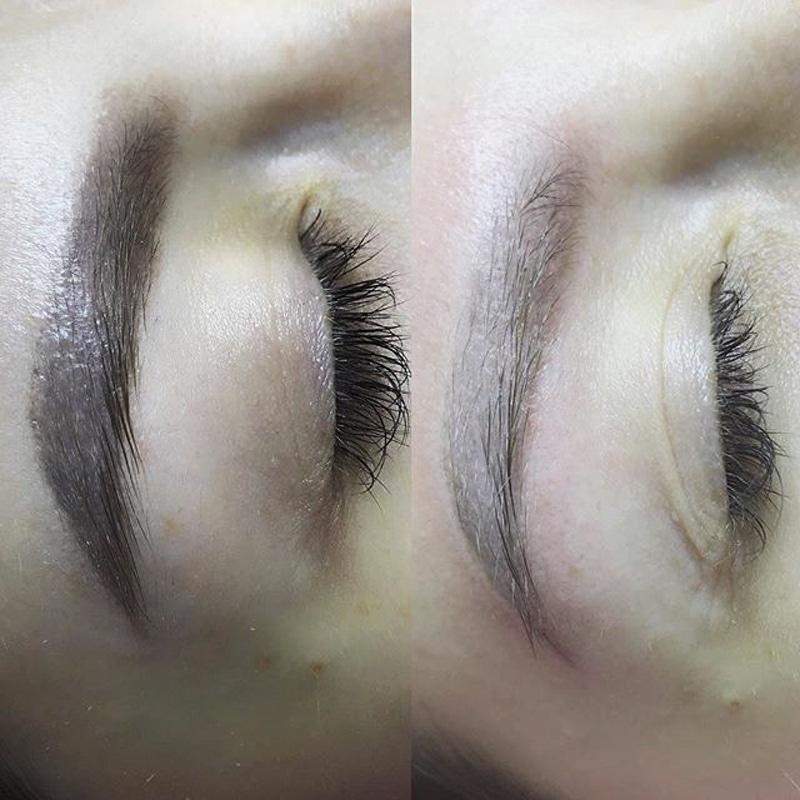 фото до и после удаления бровей