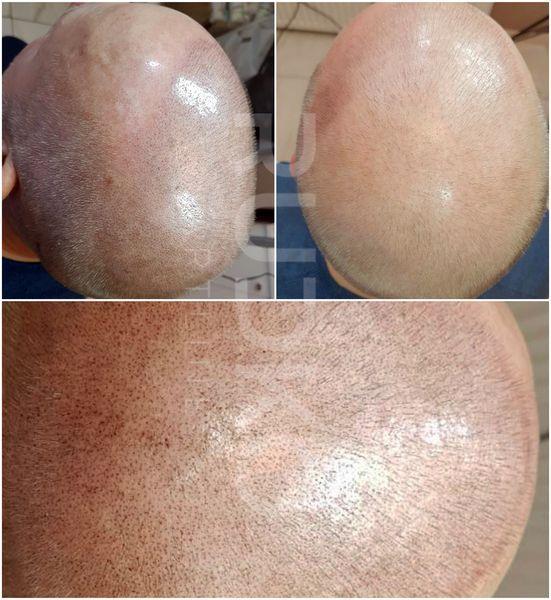 трихопігментація волосся київ фото