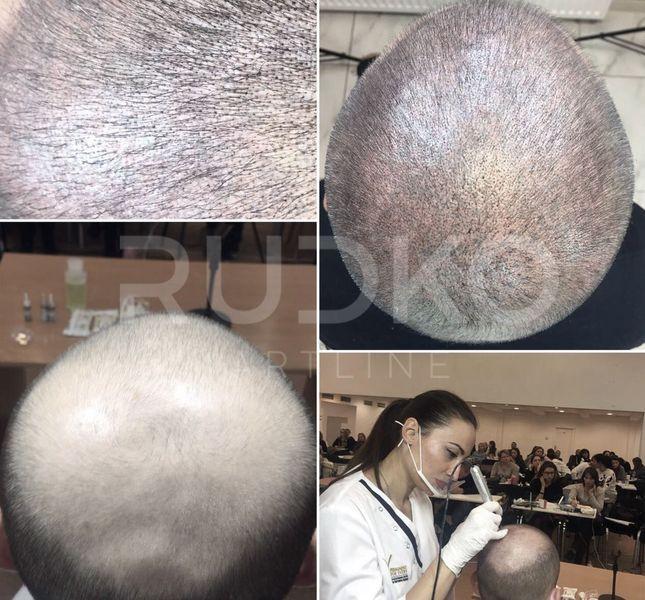 татуаж імітація волосся на голові