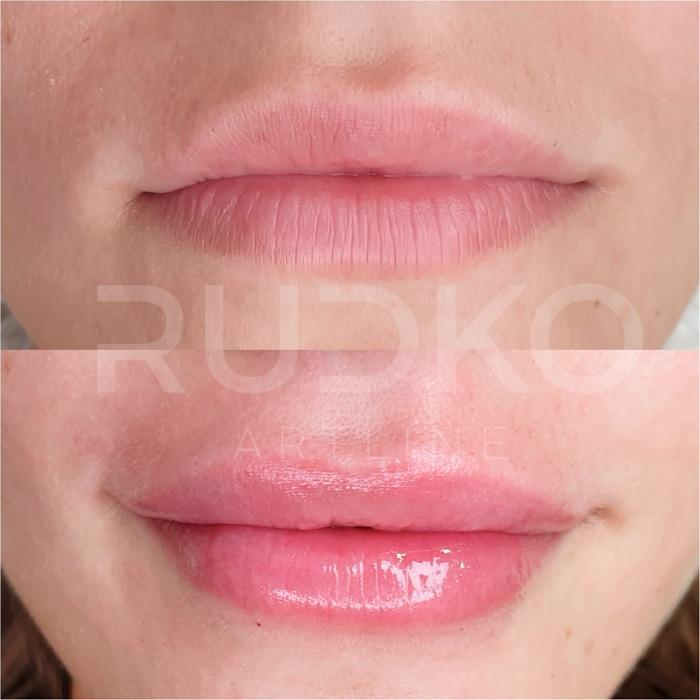 увеличить губы без боли киев