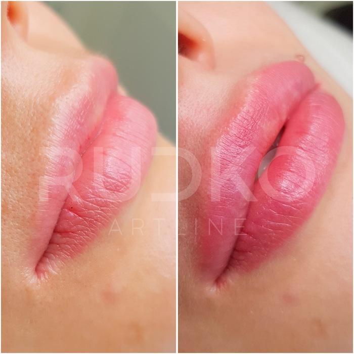 увеличенные губы до и после фото